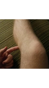 extra bone in leg