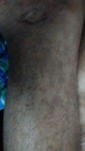 spots on both legs