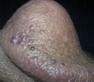 black-pimples-corona