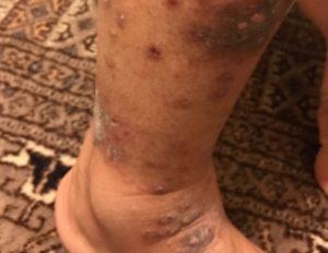 bad-itching-on-leg