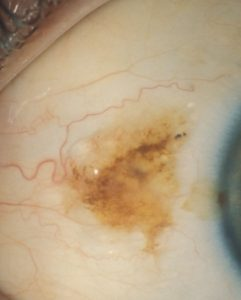 brown-sclera