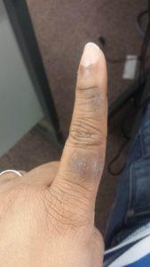 cracked-fingers
