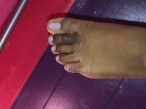 toe-blue