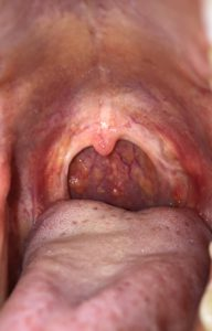 dots-in-throat