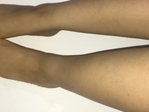normal-left-ankle