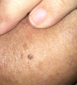 skin-cancer-on-breast
