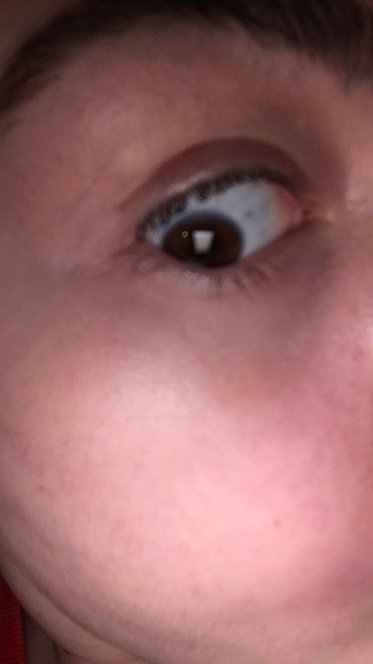 I Am Experiencing A Skin Rash Especially Below My Eyebrows And Near