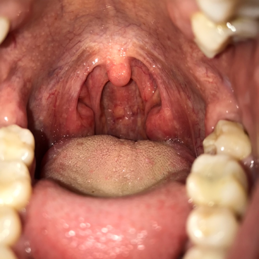 Is This Strep Throat Or Pharyngitis Ask A Doctor Free Doctors